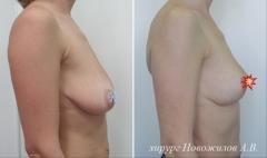 мастопексия т-образная